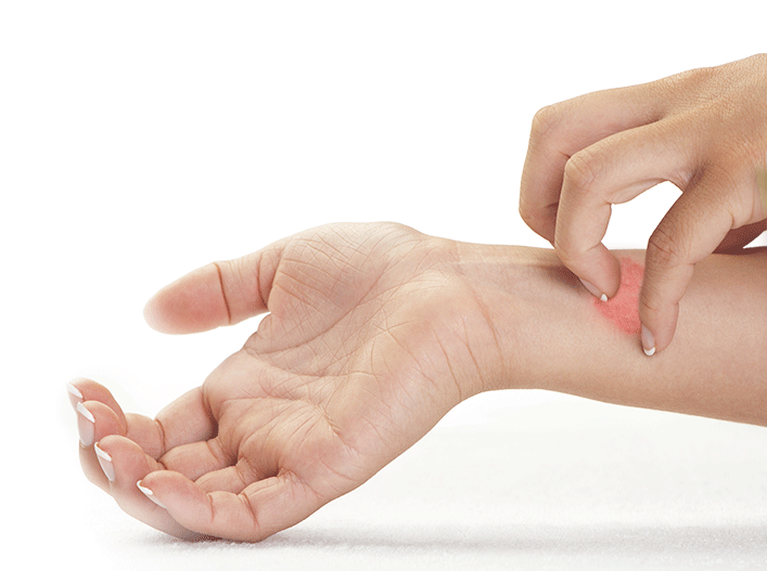 Lamisil Creme Hautpilz gegen Pilzerkrankungen der Haut